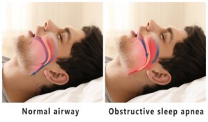 Image of upper airway after sleep apnea treatment in Arlington Heights.